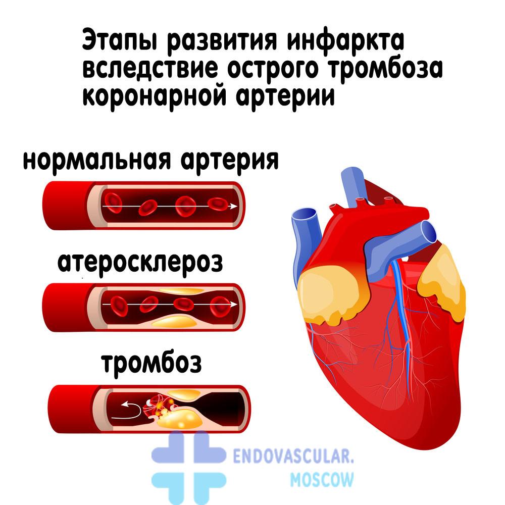 Тромбоз коронарной артерии приводит к инфаркту
