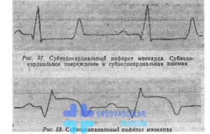 ЭКГ признаки мелкоочагового инфаркта миокарда
