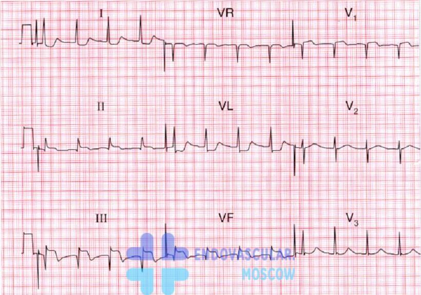 ЭКГ признаки нижнего инфаркта миокарда