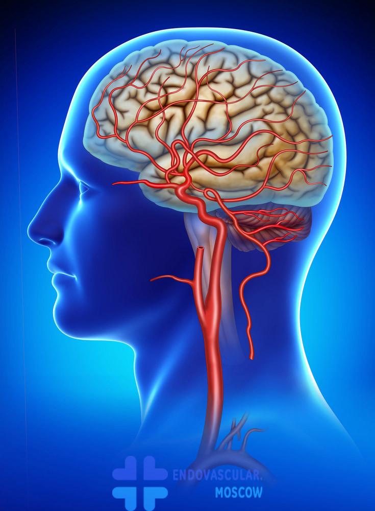 Иллюстрация анатомии сонной артерии