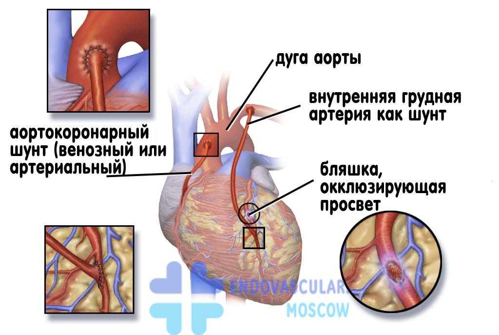 Стентирование после инфаркта миокарда что это такое фото