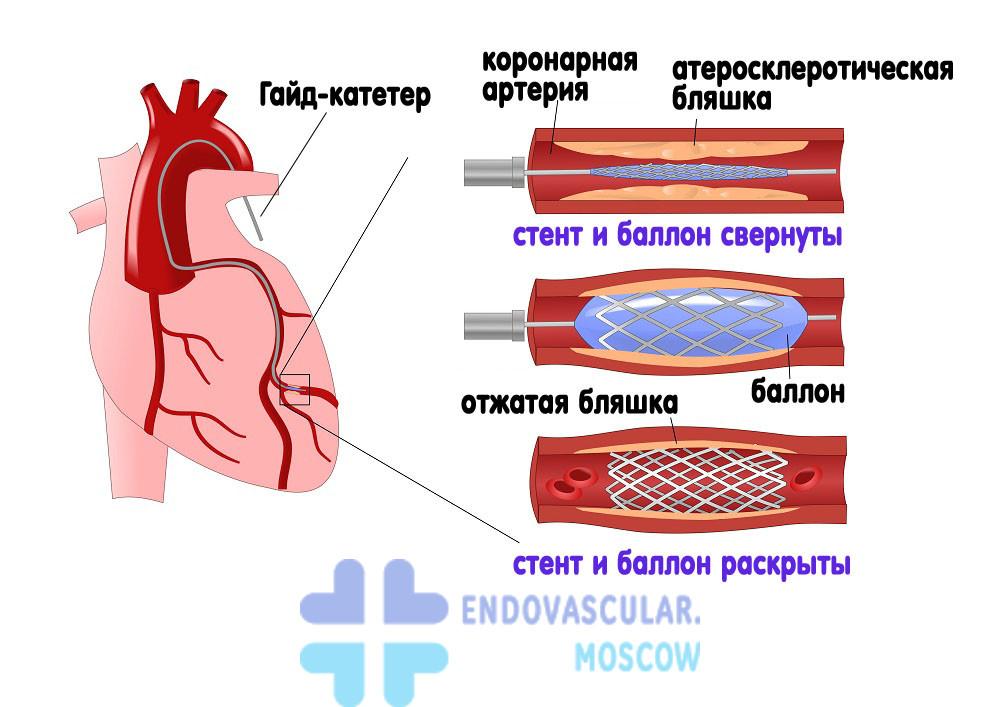 Этапы и методика стентирования