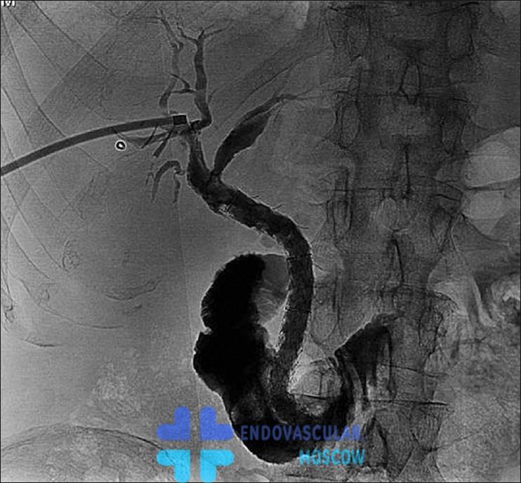 Стент в холедохе - рентгеноскопия