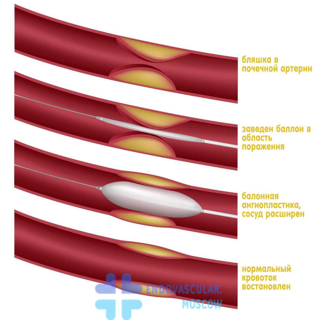 Ангиопластика и стентирование почечных артерий