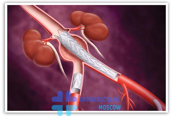 Схема позиции стент-графта при аневризме брюшного отдела аорты