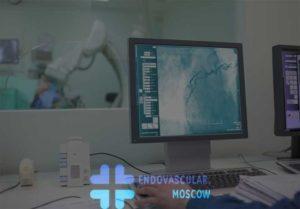 селективная церебральная ангиография в Москве