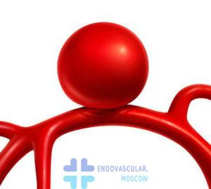 Аневризма церебральной артерии