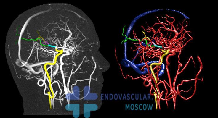 Контрастирование сосудов мозга с 3D-реконструкцией