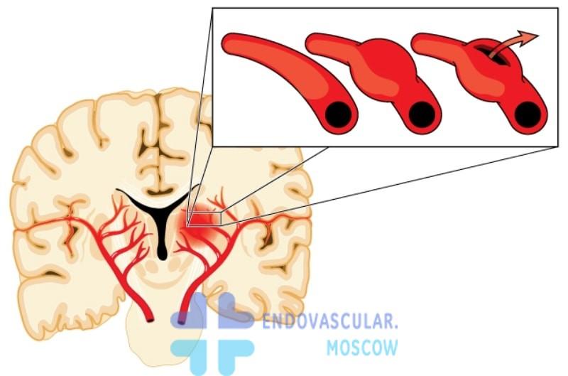 Разрыв аневризмы мозга