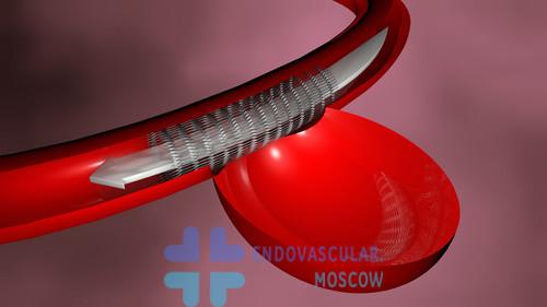 Эмболизация аневризмы микроспиралями со стент-ассистенцией