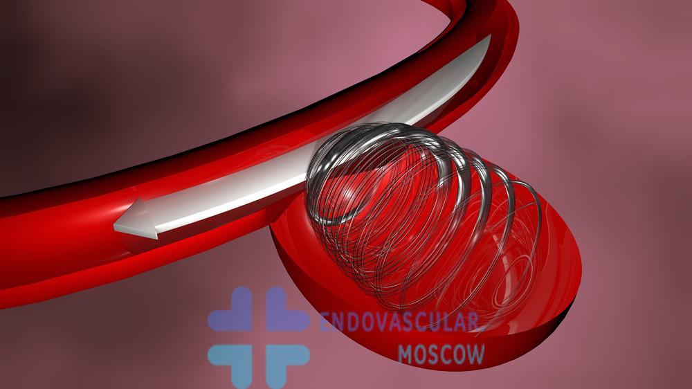Эмболизация аневризмы микроспиралями
