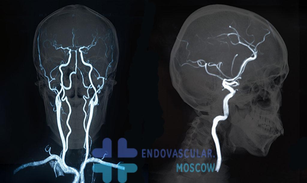 МРТ сосудов мозга