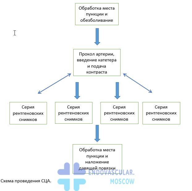 Схема проведения селективной церебральной ангиографии