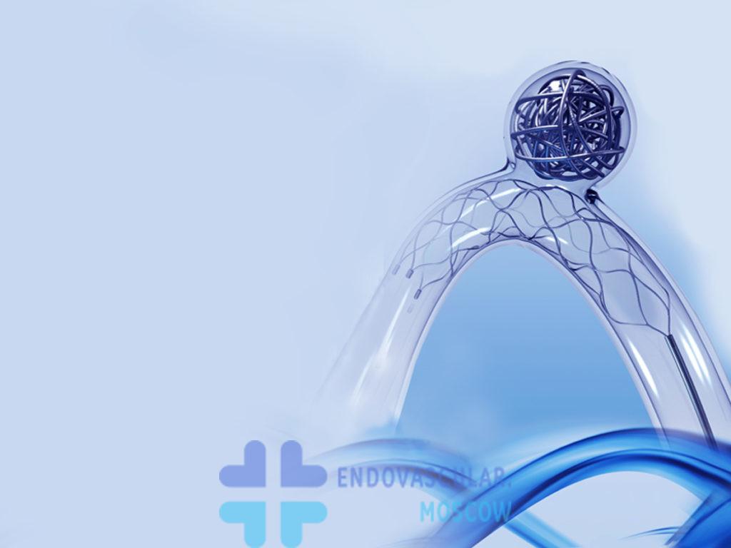 Эмболизация аневризмы микроспиралями axium со стент-ассистенцией стентом solitaire