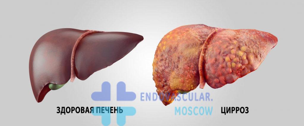 Цирроз печени с развитием рака печени