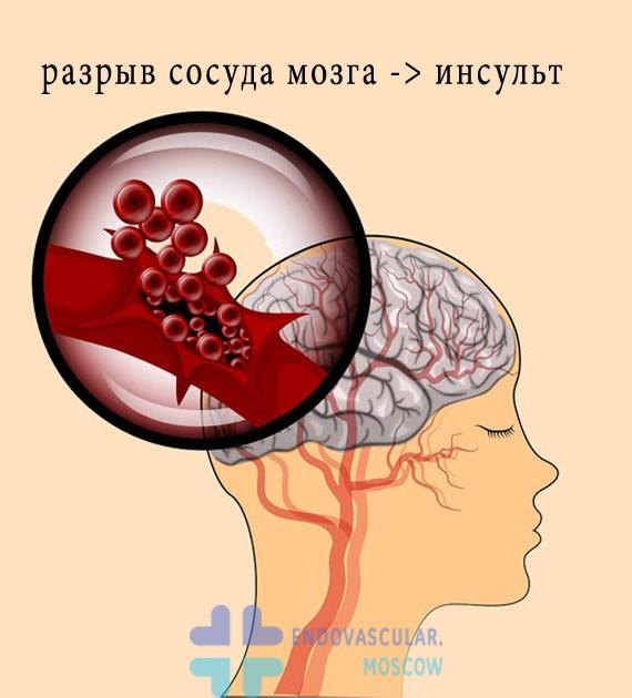 фото геморрагического инсульта