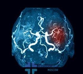 сосуды мозга при инсульте