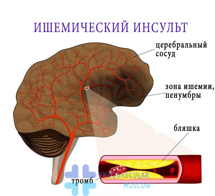 ишемический инсульт вследствие тромбоза