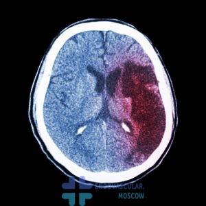 ишемическое поражение мозга