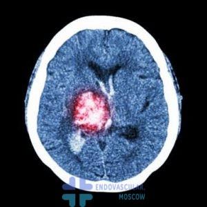 КТ мозга при инсульте