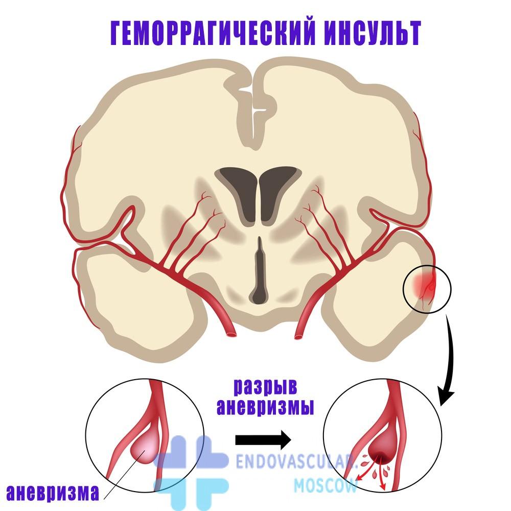разрыв аневризмы и инсульт
