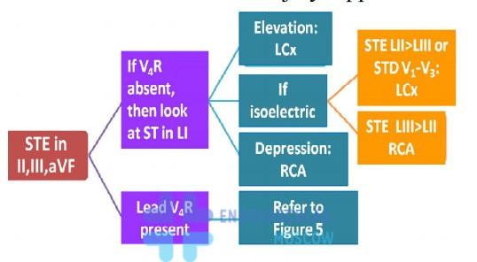 диагностика инфаркта нижней стенки