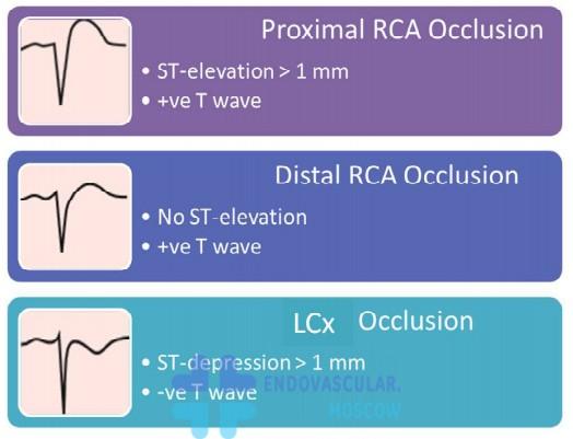 диагностика инфаркта по V4