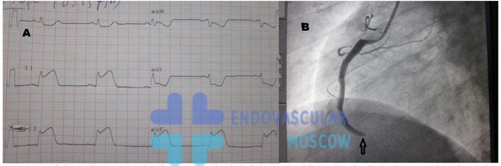 ЭКГ при окклюзии правой коронарной артерии