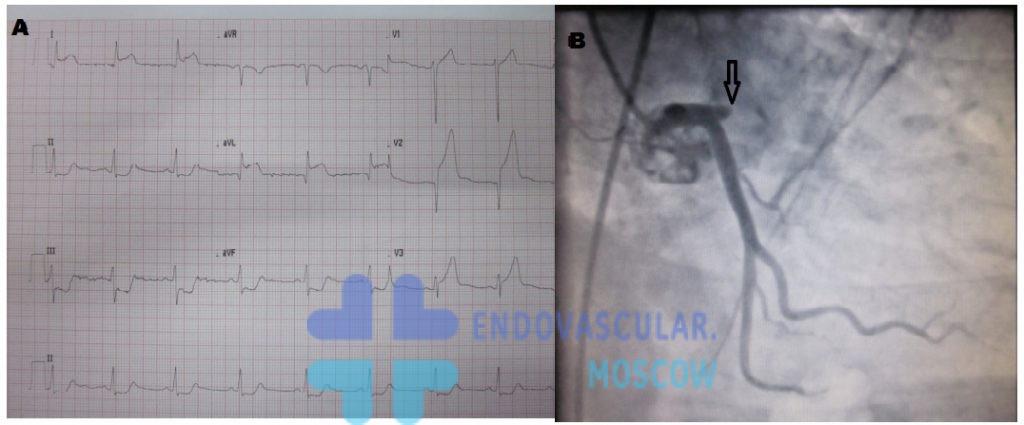 инфаркт передней стенки ЭКГ