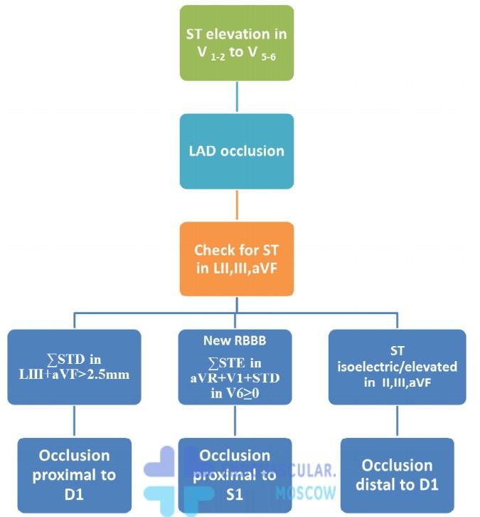 локализация окклюзии ПМЖВ