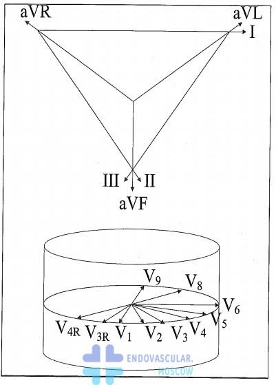 проекция ЭКГ отведений