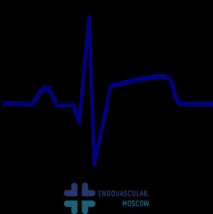 подъем сегмента ST на ЭКГ