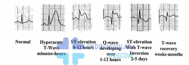 трансмуральный Q инфаркт ЭКГ